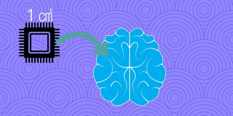 脳 インプラント